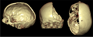3D-computed-tomography (CT) reconstruction of the skull after decom- pressive craniectomy from three different perspectives